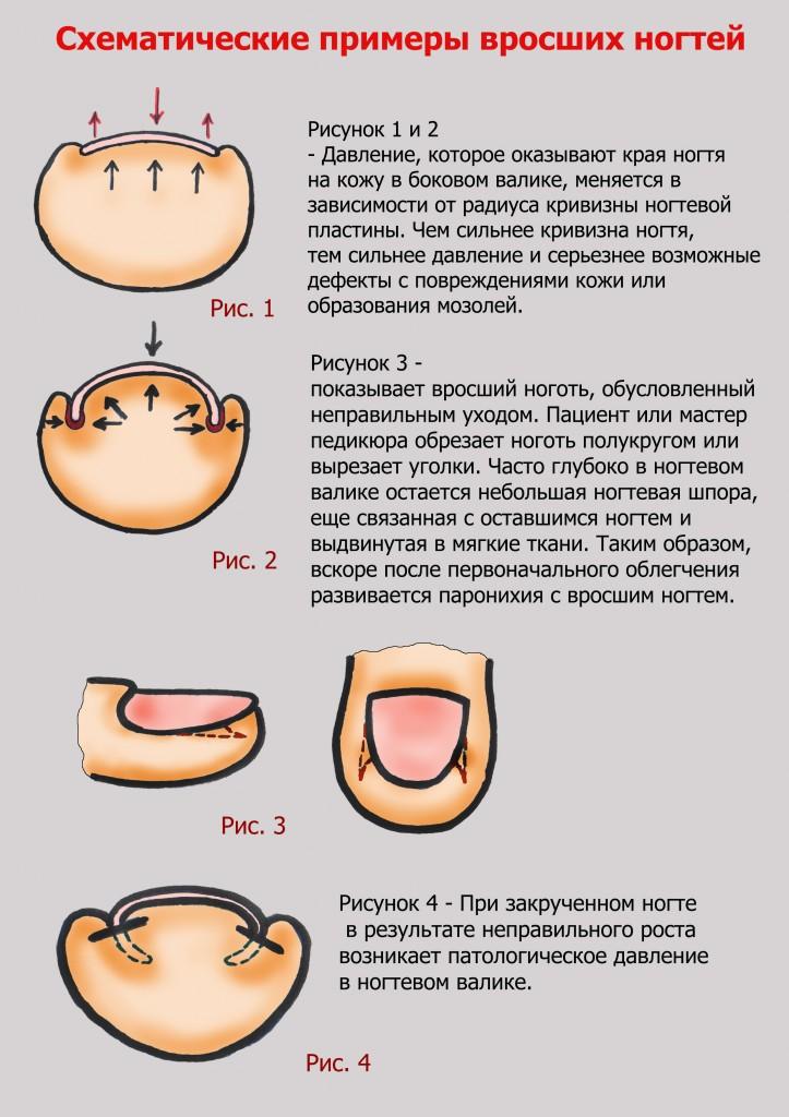 Педикюр как правильно обрезать