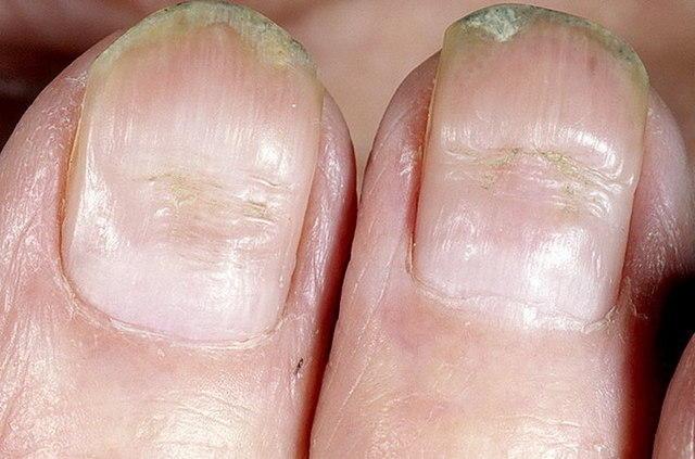 Почему белеют ногти на руках или ногах: причины и возможные решения