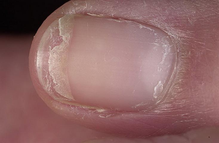Ногти на ногах имеют грибок