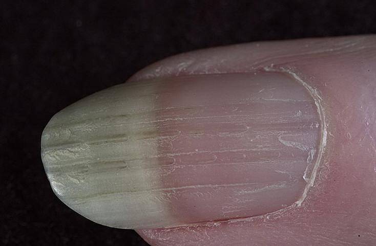 Продольная исчерченность ногтей