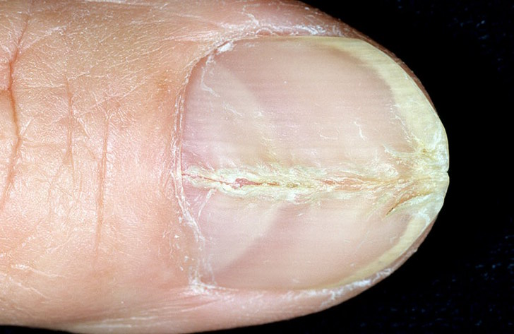 Что делать если пожелтел палец