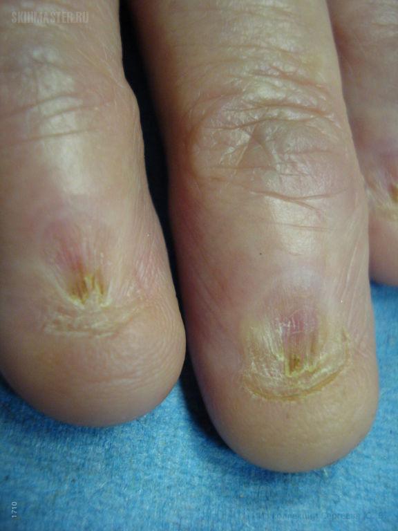 Палец руки без ногтя 58