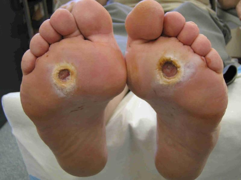 Диабетическая нога гангрена стопы