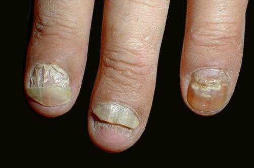 Палец руки без ногтя 37