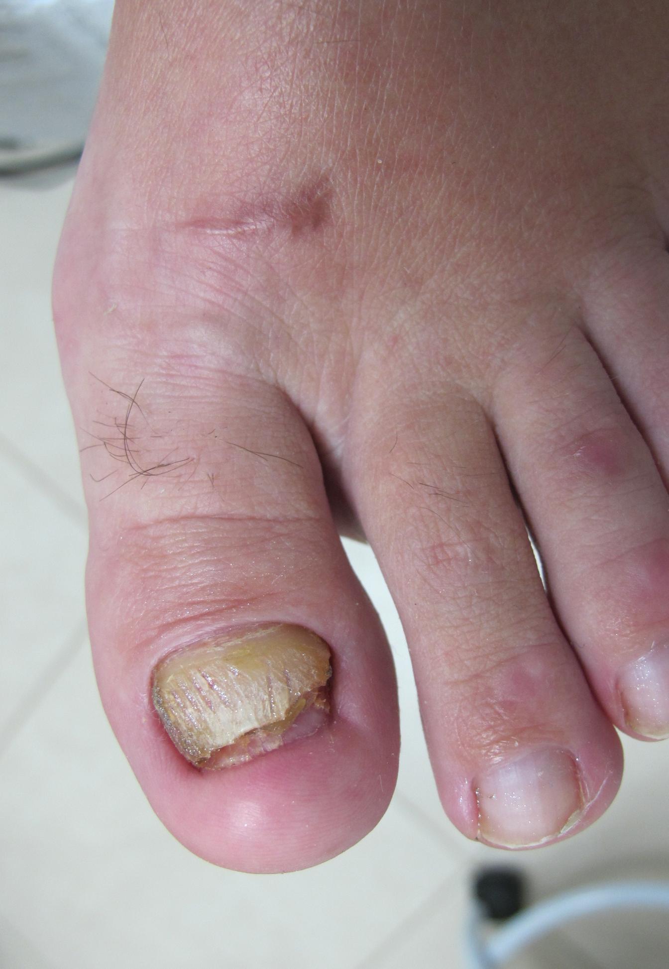 Гнойный грибок на пальцах ног