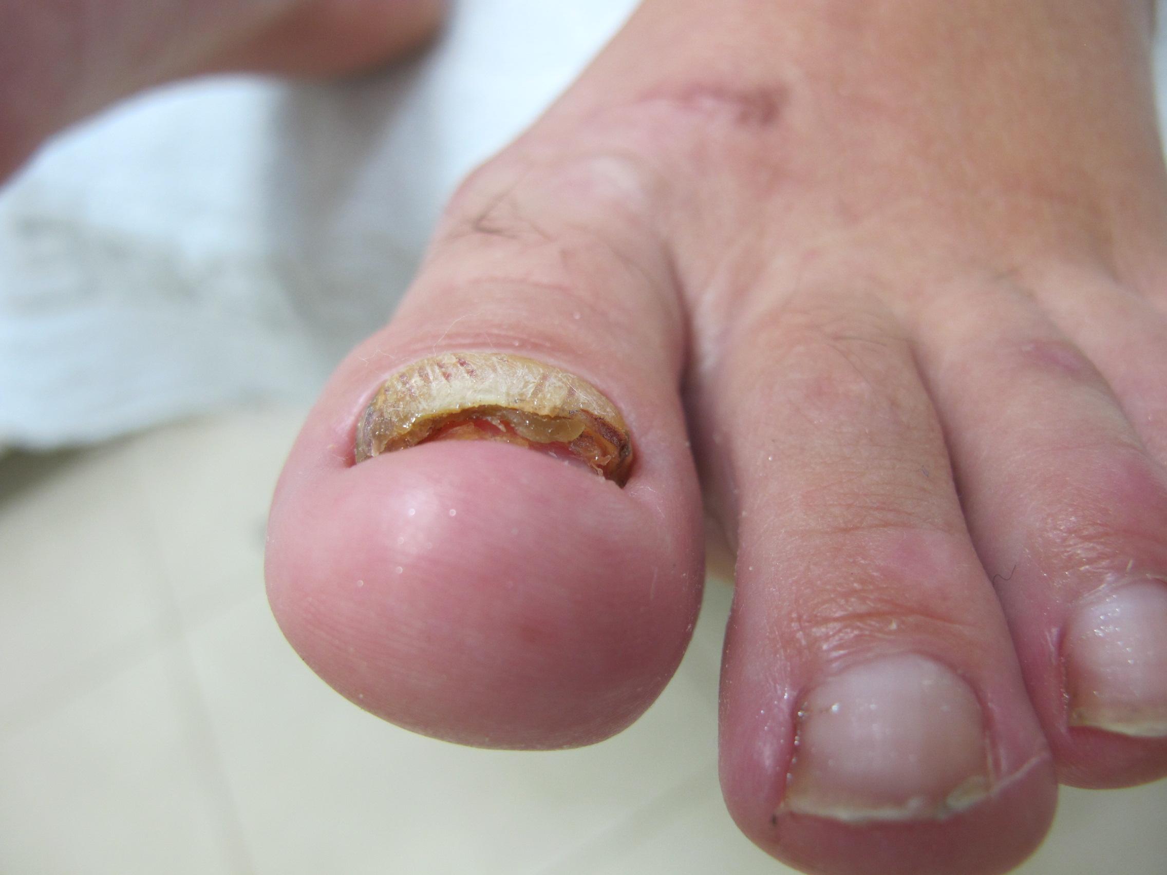 Поврежден матрикс ногтя