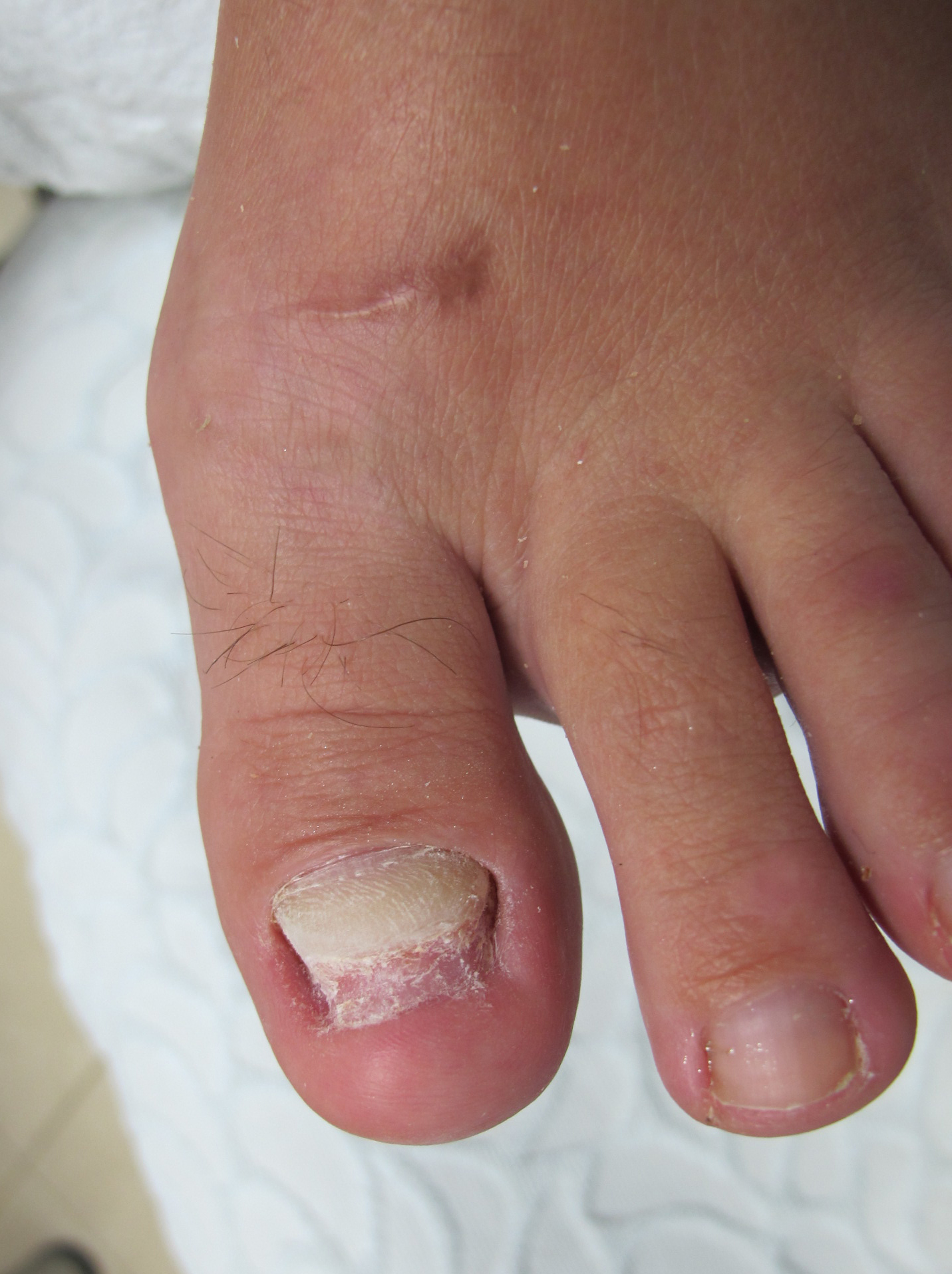 Грибок на пальцах ног с язвами