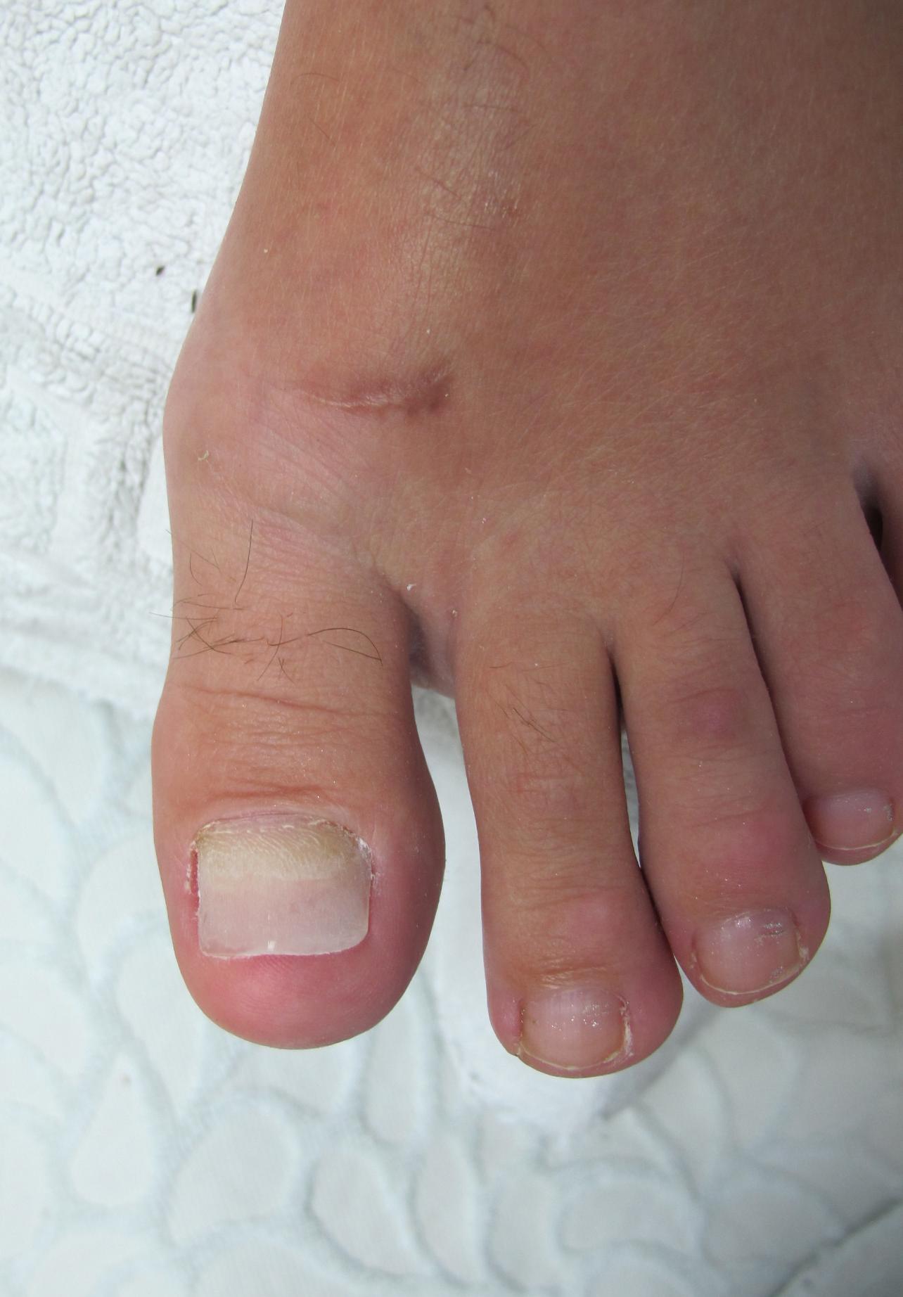 Грибок ногтей на ногах лечить уксусом и йодом