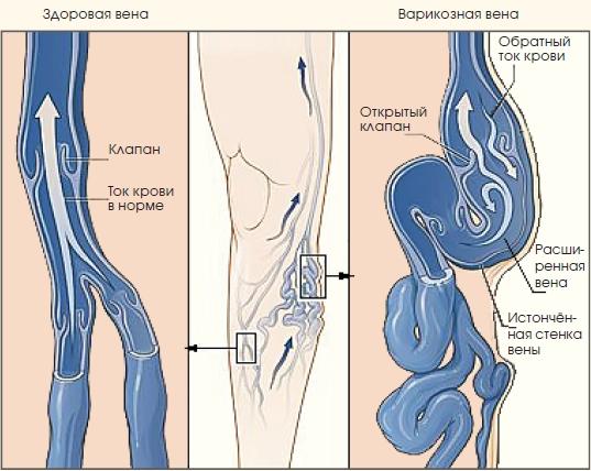 Вены на ногах лечение саратов
