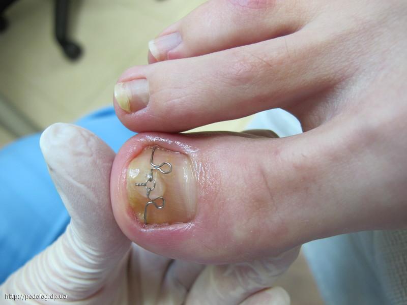 Вросшие ногти это грибок